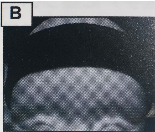 脳の活性化「CMC ヘッドバンド Bタイプ」