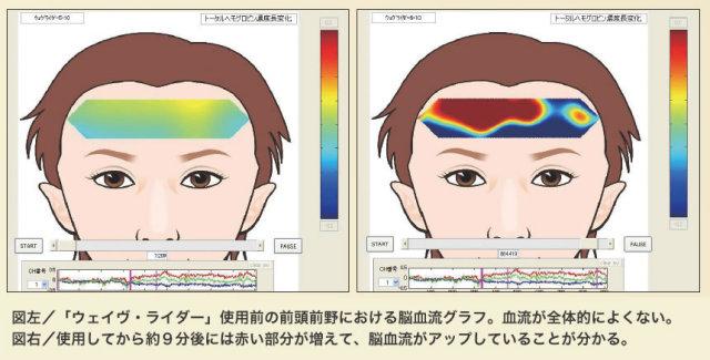 脳血流グラフ