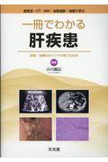 超音波・CT・MRI・血管造影・病理で学ぶ 一冊でわかる肝疾患 診断・治療のポイントが見てわかる