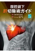 腹腔鏡下肝切除術ガイド