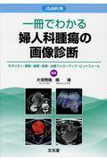 JSAWI発 一冊でわかる婦人科腫瘍の画像診断 モダリティ・解剖・病理・診断・治療フォローアップ・ピットフォール