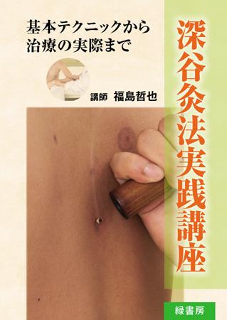 深谷灸法実践講座(DVD)