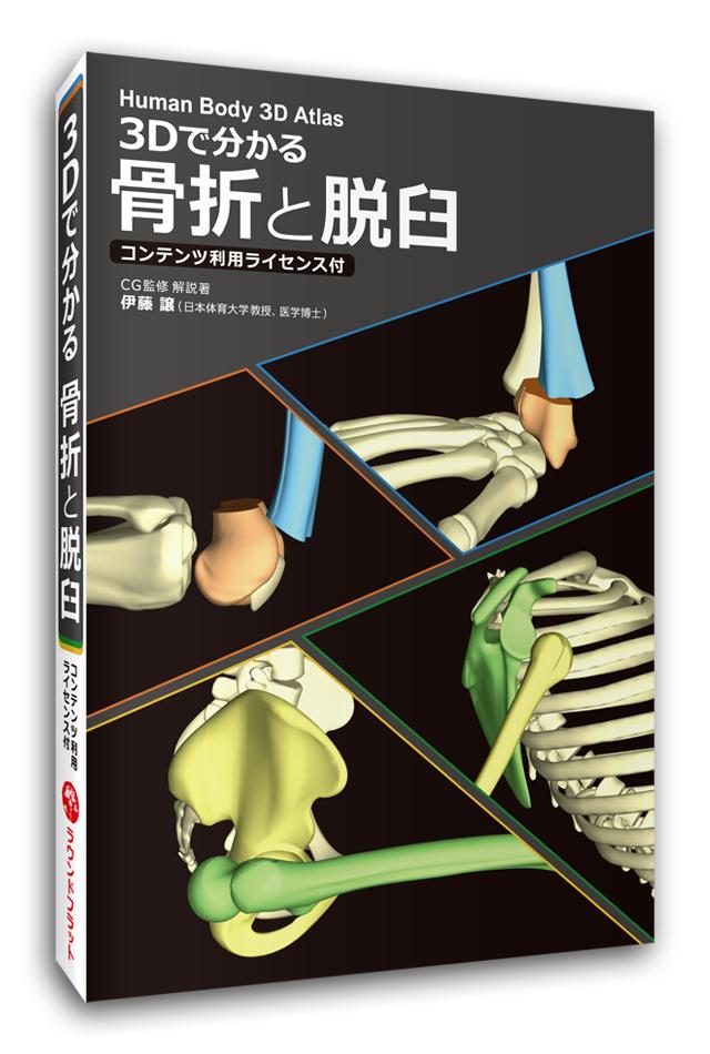 【ソフト】3Dで分かる 骨折と脱臼≪コンテンツ利用ライセンス付≫【販売開始】