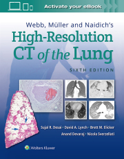 WEBB, MULLER & NAIDICH'S HIGH RESOLUTION CT OF LUNG, 6TH ED.