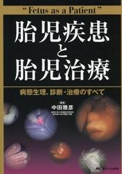 胎児疾患と胎児治療