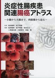 炎症性腸疾患関連腸癌アトラス