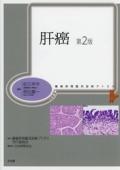 腫瘍病理鑑別診断アトラス 肝癌 第2版
