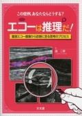 エコーは推理だ! 腹部エコー画像から診断に至る思考のプロセス